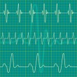 Royalty-Free Stock Vector Image: Cardiogram