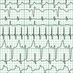 Cardiogram — Stock Vector #2978211