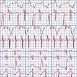 Cardiogram — Stock Vector #2978218