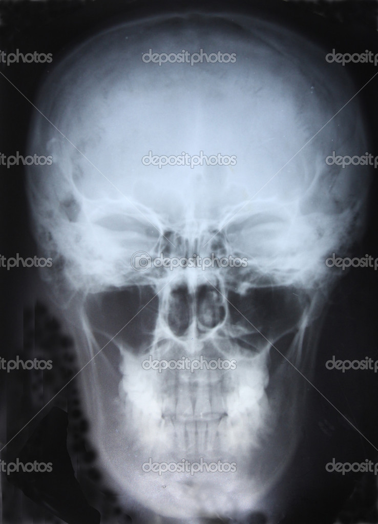 Xray of Skull. For you design — Stock Photo #2899844