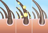 Hair cure — Stock Vector