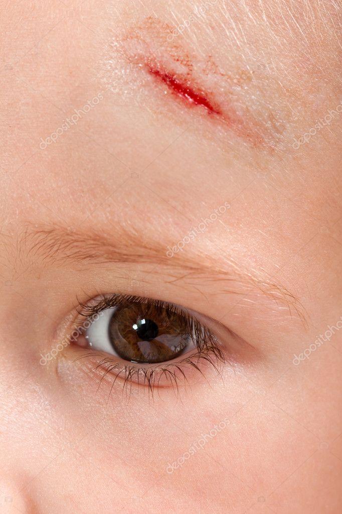 Лечение ссадин на лице: как быстро вылечить царапины 7