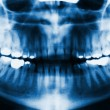 Facial x-ray — Stock Photo