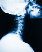 Neck x-ray — Stock Photo
