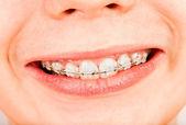 Smile with braces, boy ... — Stock Photo