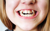 Bad teeth — Stock Photo