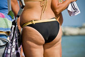 Adult women tushie with cellulite — Stock Photo