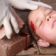 Boy with head injury - Stock Photo