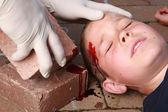 Boy with head injury — Stock Photo