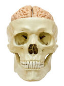 Skull with visible brain — Stock Photo