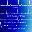 All degree AV block in coronary disease — Stock Photo #2706867