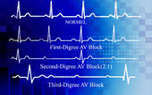 All degree AV block in coronary disease — Stock Photo