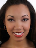 Smiling young black woman with braces upper teeth — Stock Photo