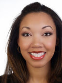 Young black woman with big smile braces upper teeth — Stock Photo