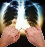 Smettere di fumare — Foto Stock