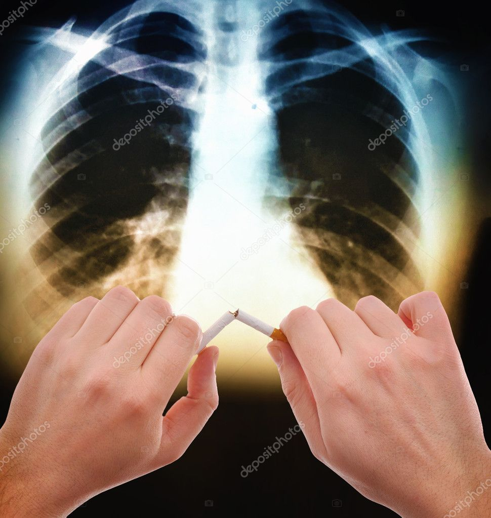 Hands breaking a cigarette in front of the x ray image of human abdomen — Stock Photo #2707913