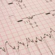 Cardiological test results — Stock Photo #3084175
