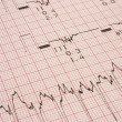 Stock Photo: Cardiological test results