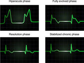 Post miocardial infarction phases — Stock Photo