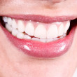Stock Photo: White teeth