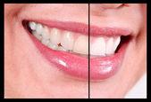 Sonrisa de mujer — Foto de Stock