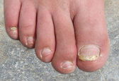 Infected Toenails — Stock Photo