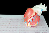 Heart on an ecg — Stock Photo
