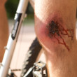 Mwith wound on his knee — Stock Photo #3824693
