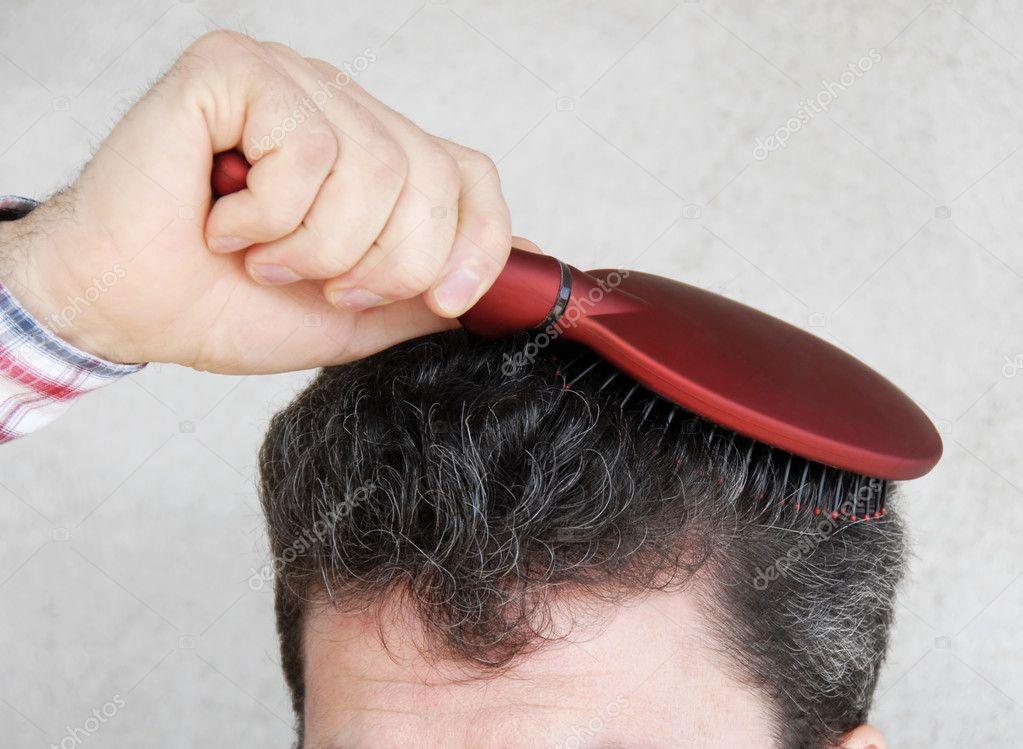 Низкий прогестерон и выпадение волос