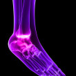 Stock Photo: Inflammed ankle