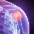 Inflamed shoulder — Stock Photo
