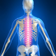 Painful spine — Stock Photo
