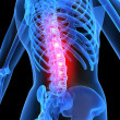 Painful spine — Stockfoto
