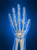 Skelett hand — Stockfoto