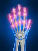 Painful hand joints — Stock Photo