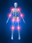 болезненные суставы — Стоковое фото