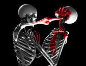 Fighting Skeletons — Stock Photo