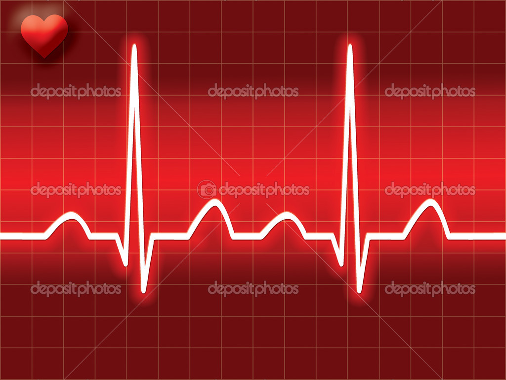 Как сделать что бы остановилось сердце 900