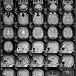 Head magnetic resonance image — Stock Photo