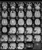 Head magnetic resonance image — Stock Photo