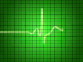 EKG Signal — Stock Photo