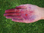 Red bilberry on the open palm of the juice of red berries — Stock Photo