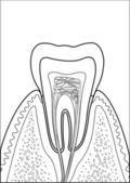 Molar tooth — Stock Vector