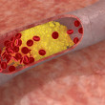 Cholesterol plaque in artery — Stock Photo