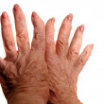 Arthritic Hands — Stock Photo #3850977