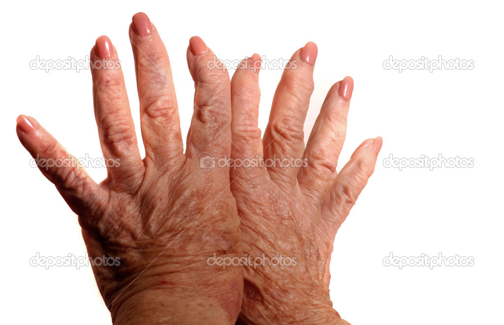 Hands With Arthritis — Stock Photo #3850977