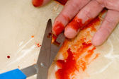 CUT FINGER — Stockfoto