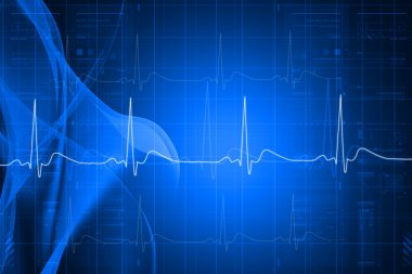 Digital illustration of heart monitor screen with normal beat signal
