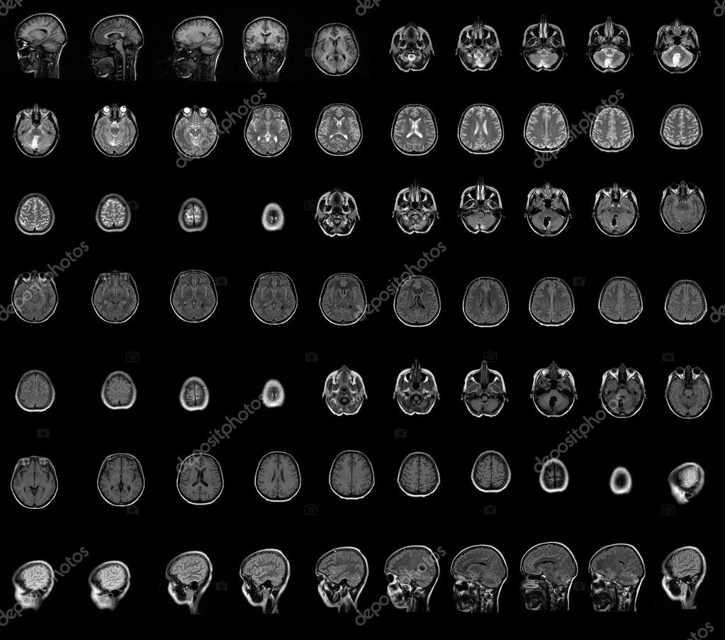 CT-Computer-Tomographie-Gehirn — Stockfoto © Cancerus #3872317