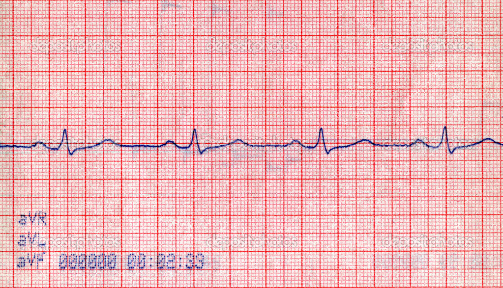 Closeup diagrama doppler cardiovascular, paciente concepto de estrés ...